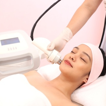 RF V Contour with Skin Exfoliation Deal Photo 1